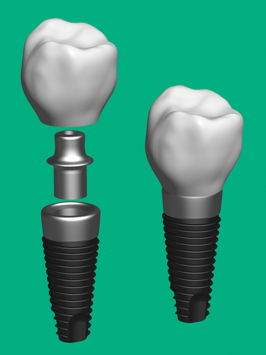 Picture of dental implant and abutment